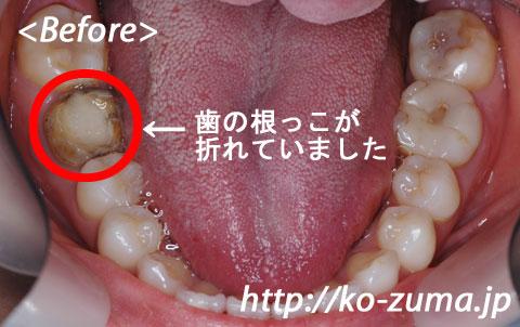 噛む 痛い と 歯 銀