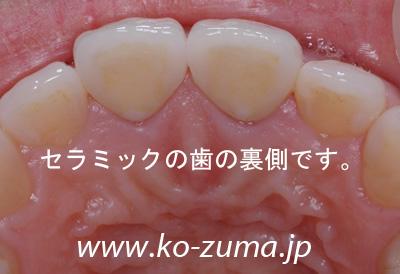 s20080328190733