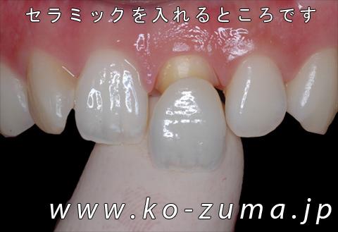 s20080510130337