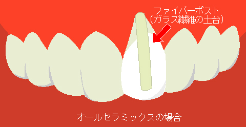 s20120706125901