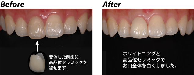 before→after2